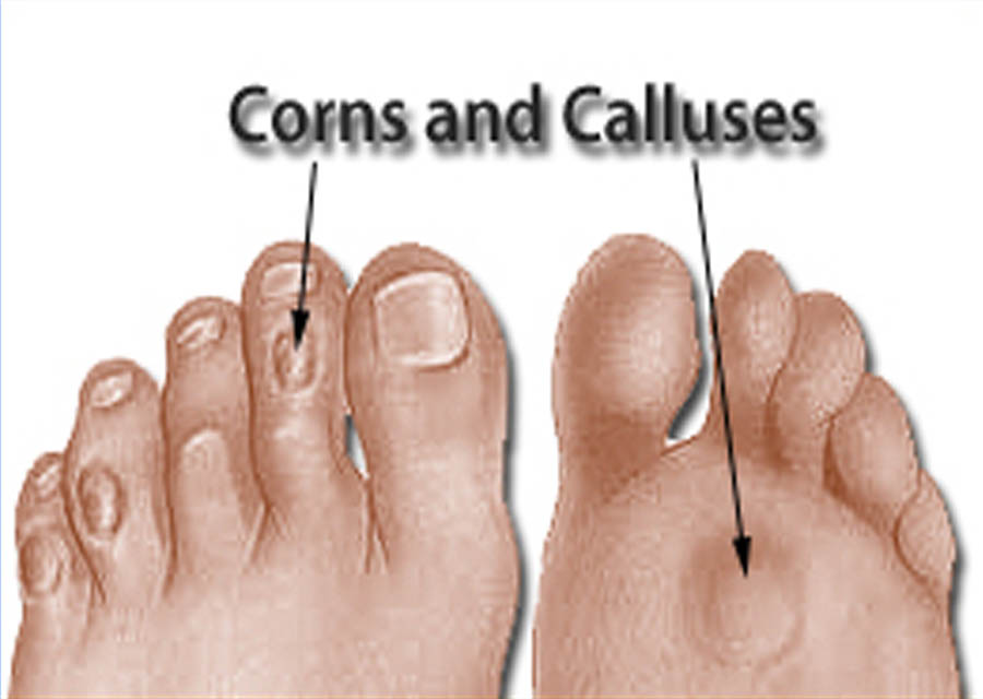 pictures of calluses #10